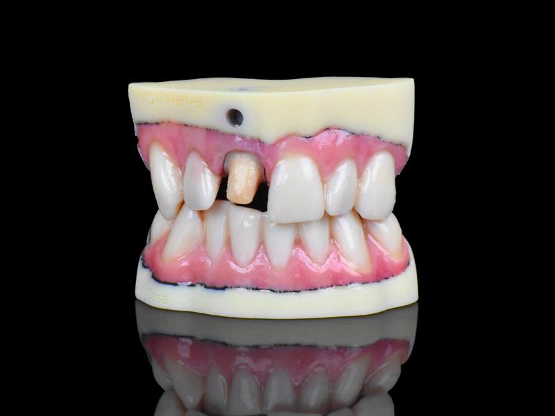full-color dental