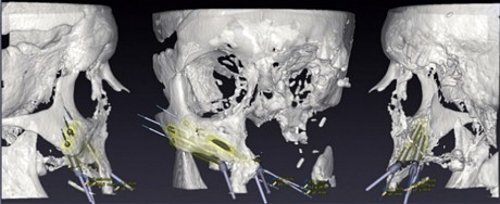 Doctors 3D Print a Face and Give a Cancer Victim a New Chance at a Normal Life