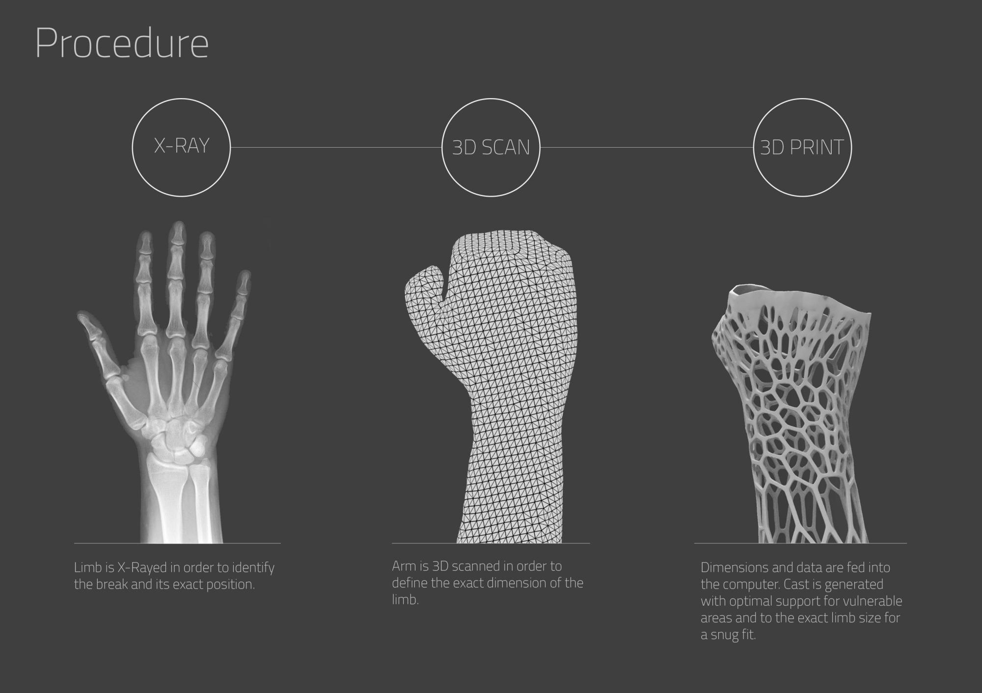 Cortex 3D Printed Cast
