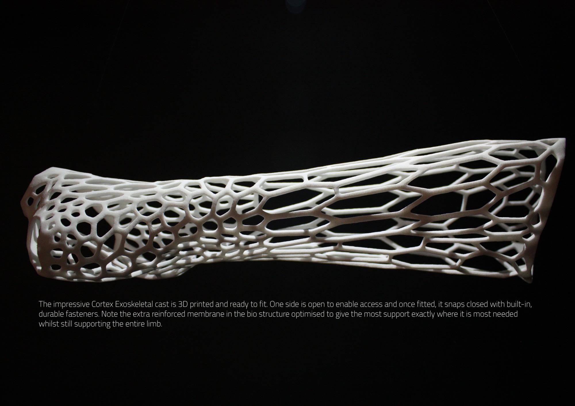Cortex 3D Printed Cast structure