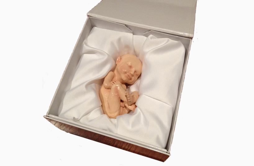 Yes That S Weird 3d Printing A Figurine Of An Unborn