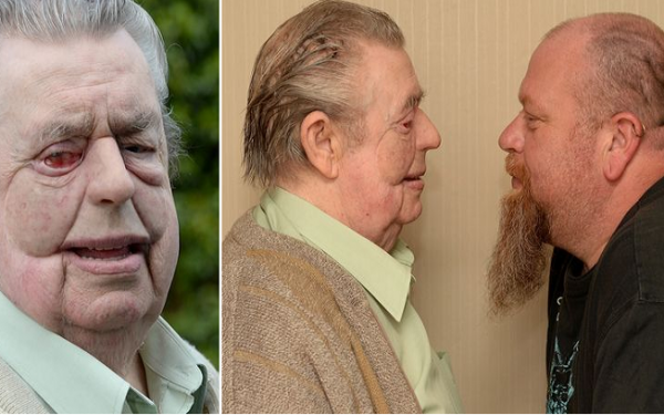 A 74 year Old Man Receives a 3D Printed Silicone Mask to Recover His Face