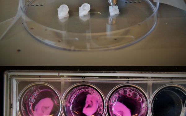 First Ever Bioink For Production of Human Cartilage and Seeding of Human Chondrocytes