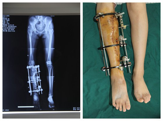 Surgeon Successfully Treats a Deformed Leg with 3D Printing Technology