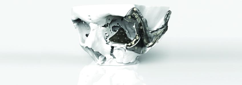 The Impact of 3D Printing on Healthcare – 41st Arab Health DUBAI