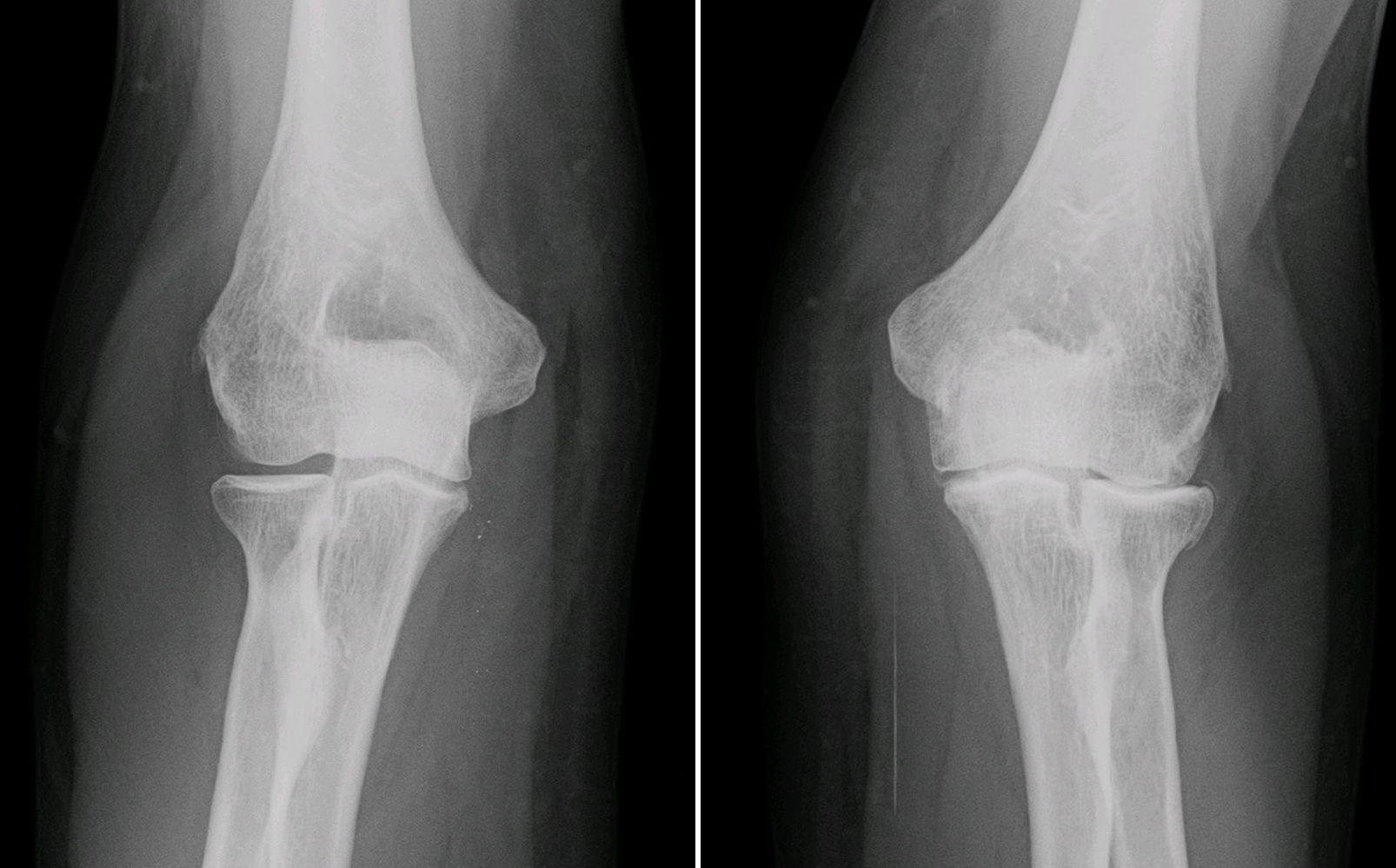 Osteoarthritis bioprinting cells bones alginate gel