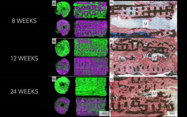 NYU Researchers 3D Print Growing Bone Implants