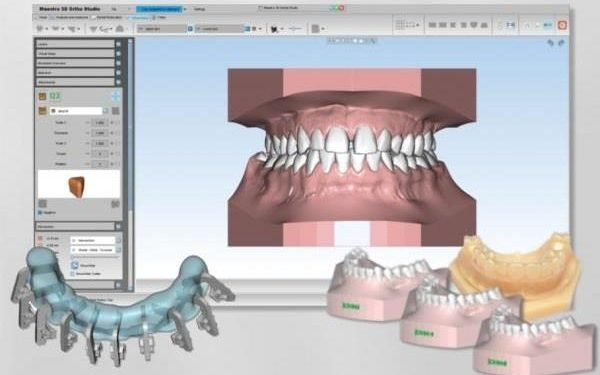 SHINING 3D Collaborates With AGE For Accelerating Dental Solution