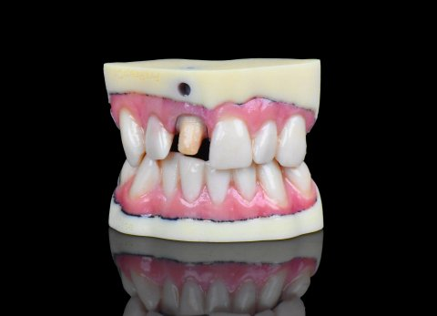 Stratasys J720 Prints Full-color Dental Products