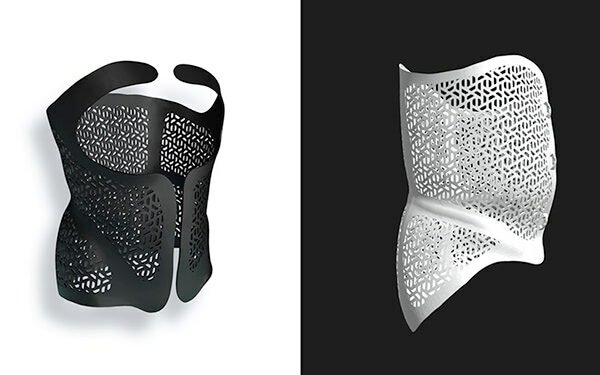 Treating Scoliosis with Exos Armor, a 3D Printed Back Brace