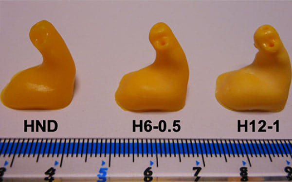 3D Printed Drug Delivering Hearing Aids