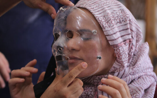 3D Printed Compression Masks Treating Burns in Gaza