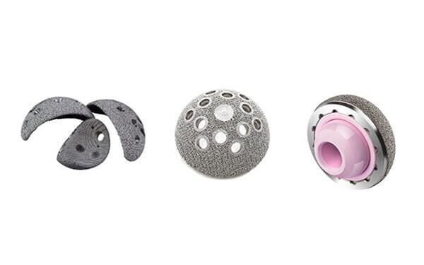 Metal AM Medical Implants Taking off in China
