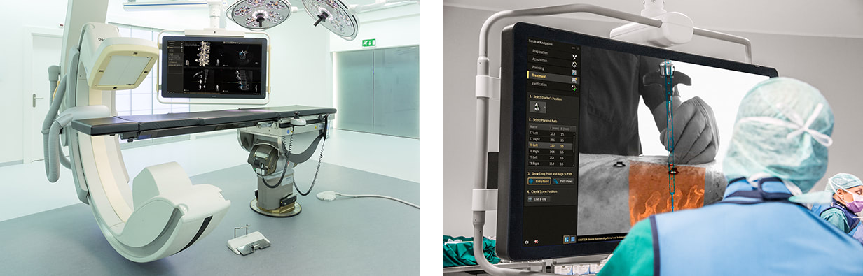 Philips-Hybrid-Operating-Room-with-Surgical-Navigation-Technology