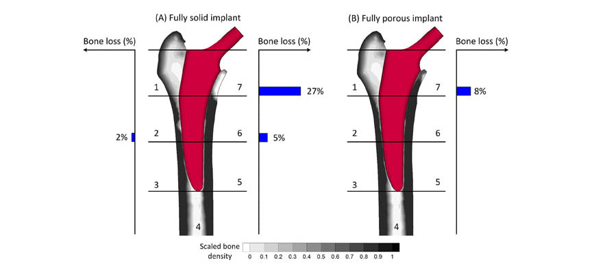 Solid vs. Porous Implant