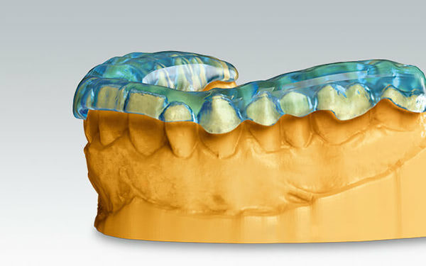 Digital Dentistry: Auto-stacking for Volume Production